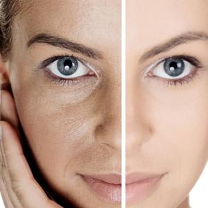Envejecimiento cutáneo hormonal